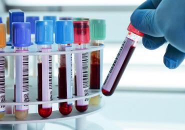 मुंबईकरांसाठी मोफत रक्त तपासणी, बीएमसीची घोषणा