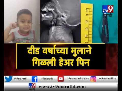 मुंबईत दीड वर्षीय मुलाने हेअर पीन गिळली, पाहा संपूर्ण व्हिडिओ