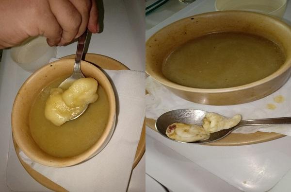 रुग्णाच्या सूपमध्ये रक्ताने माखलेले कापसाचे बोळे, जहांगीर रुग्णालयातील धक्कादायक प्रकार